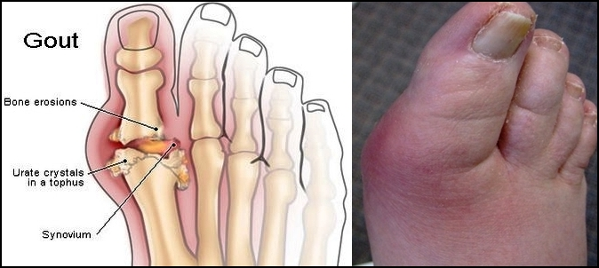 high uric acid vitamin d deficiency natural cures for gout in big toe acute gouty arthritis attack