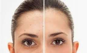 http://www.naturalbodytips.com/2014/10/natural-tips-to-remove-facial-spots.html