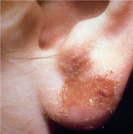 La psoriasis de la parte pilosa de la cabeza la eccema