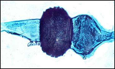 Rhizopus Zygospores Rhizopus nigrican | Yi...