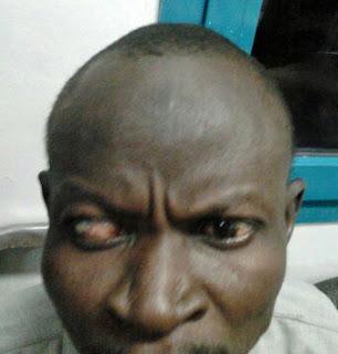 Abeker Dafallah Abutemon 39 years old has Glaucouma