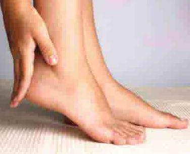 Cara Mengobati Telapak kaki gatal