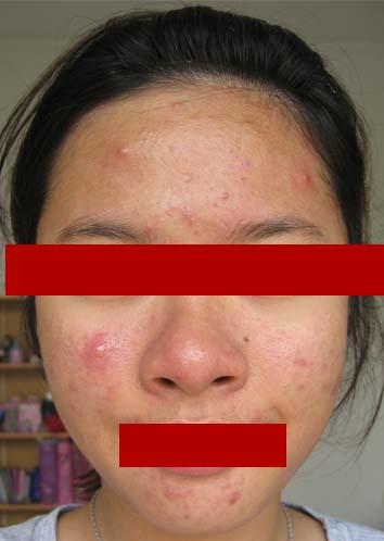 Jerawat1 Menghilangkan jerawat, tahi lalat dan luka dengan photoshop