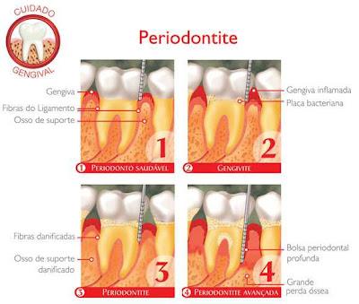 Evolução da Periodontite.