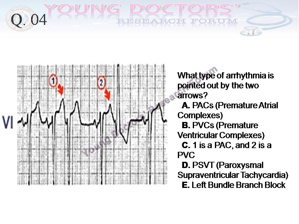 The Electrocardiography Ecg Scenariosppt Young Doctors
