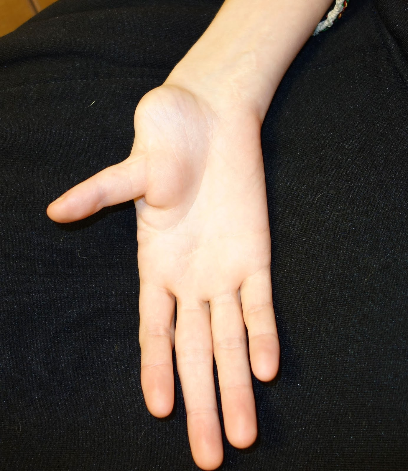 Congenital Hand And Arm Differences Thumb Deformity In Untreated
