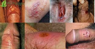 http://obatsipilis-tradisional.blogspot.com/2015/09/pengobatan-alami-penyakit-sipilis-tanpa.html