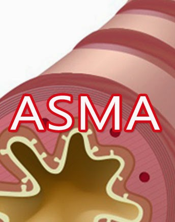 terapi-obat-asma-herbal-nasa