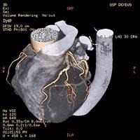 El corazón del bypass