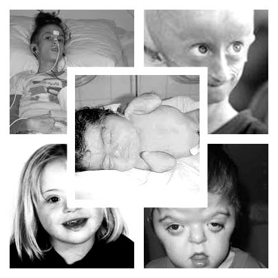 Enfermedades Extrañas Infantiles