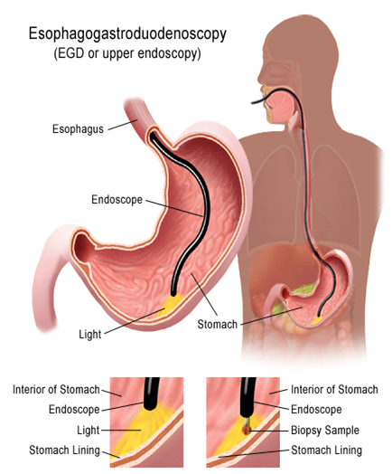 Internal Medicine: Possible factors for lower prevalence  of Esophageal stricture caused by radiation therapy