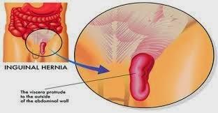 AgaricPro Pantangan Makanan bagi Penderita Hernia