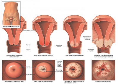 Cervical Cancer in Women
