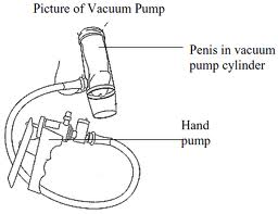 Erectile Dysfunction Pumps