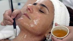 mascara-facial-caseira-pele-oleosa-acne