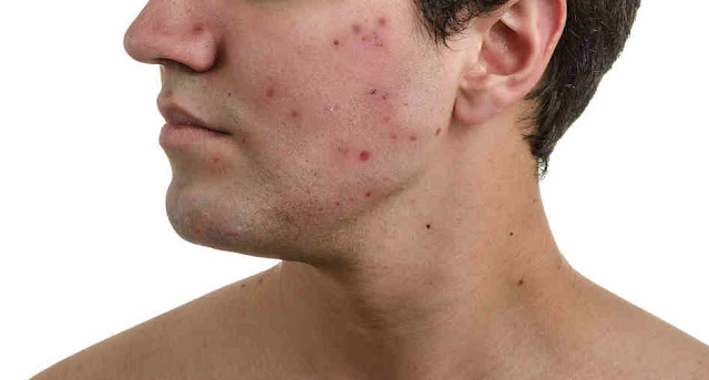 What is pimples - What are the causes of Pimpels : How to get rid of pimples in 1 day