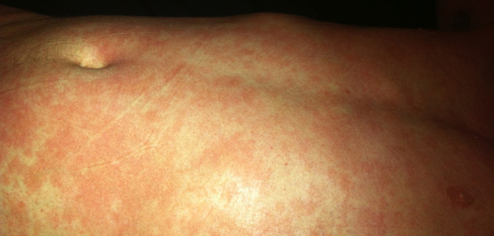 prednisone for eczema