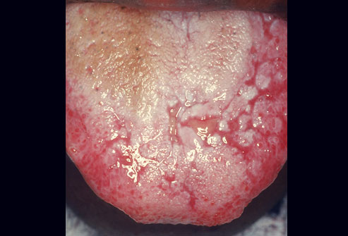 aphthous ulcers on tongue #9