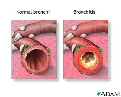 Pathophysiology of Bronchitis | Articles of Nursing