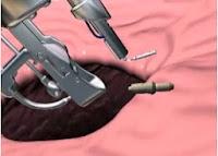 método apollo endosurgery almería tratamiento obesidad sin cirugía