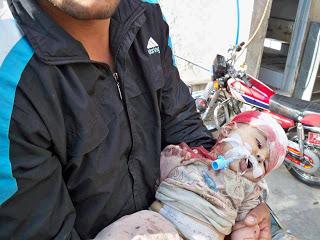 bimbo ferito+4 - L'UNIONE EUROPEA DA IL VIA LIBERA PER ARMARE I RIBELLI IN SIRIA