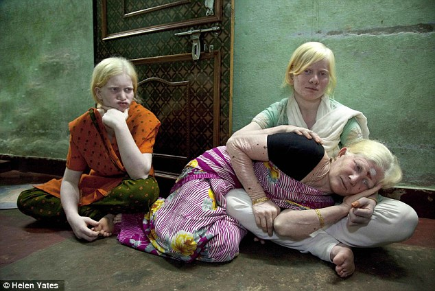 World's Biggest Albino Family in India