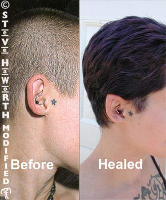 Body modification ear pointing
