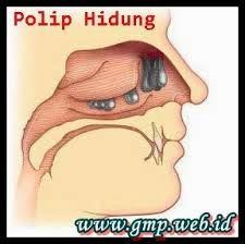 Obat Tradisional Untuk Menyembuhkan Penyakit Polip Hidung