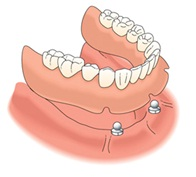 Implantes con ball-attach y prótesis completa
