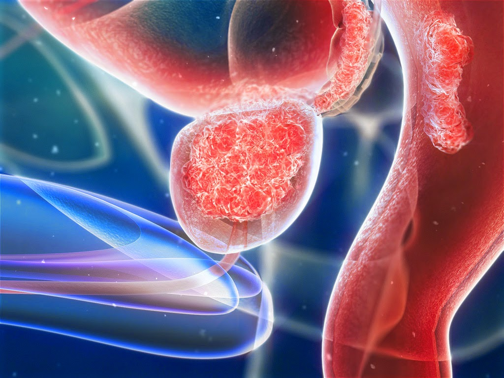 Agent Prevents Prostate Cancer Growth And Metastasis In Animal Studies