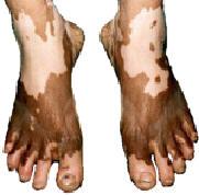białe plamy na nogach