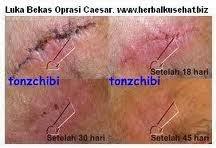 Obat Sakit Luka Caesar Tradisional