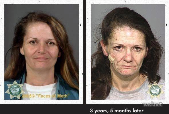 wajah pertama 2 Wajah Para Pemakai Narkoba Sebelum Dan Sesudah Kecanduan
