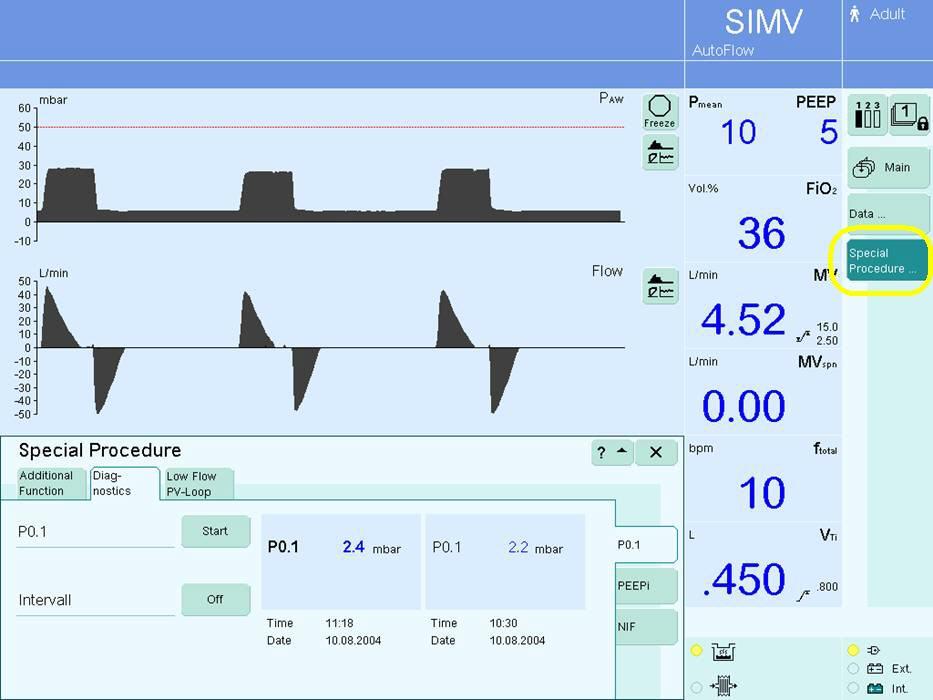 K Scott Richey Obtaining P0 1 On Various Ventilators
