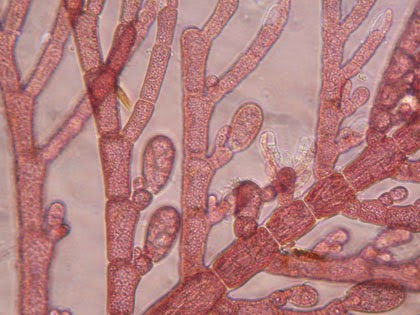 Red Algae Extract Fights Ebola ... and HIV, SARS and HCV