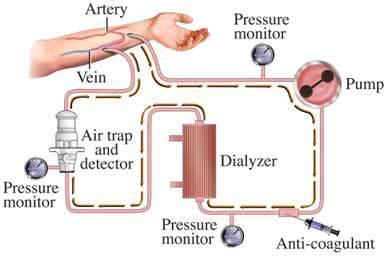 hukum cuci darah di saat puasa bagi penderita ginjal