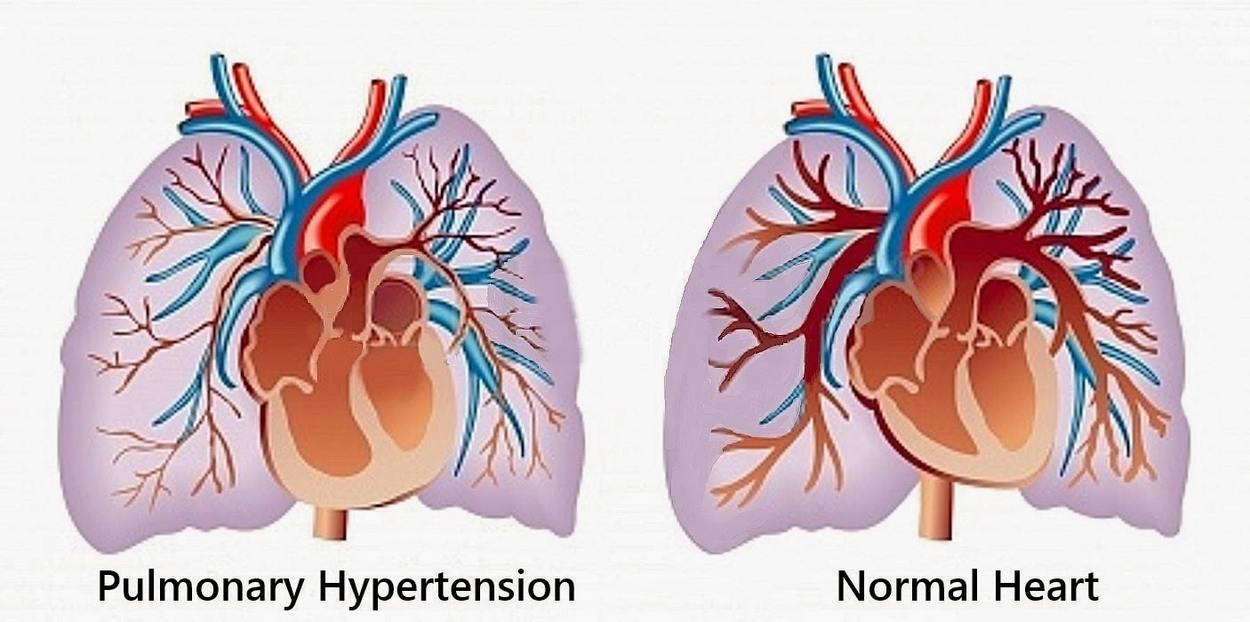 image of pulmonary hypertension