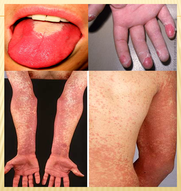 turtz on the go: scarlet fever - causes, symptoms and treatment, Human Body