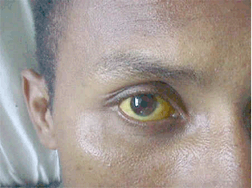Cara Alami Memutihkan Mata Yang Kuning Dengan Cepat Tips Kecantikan
