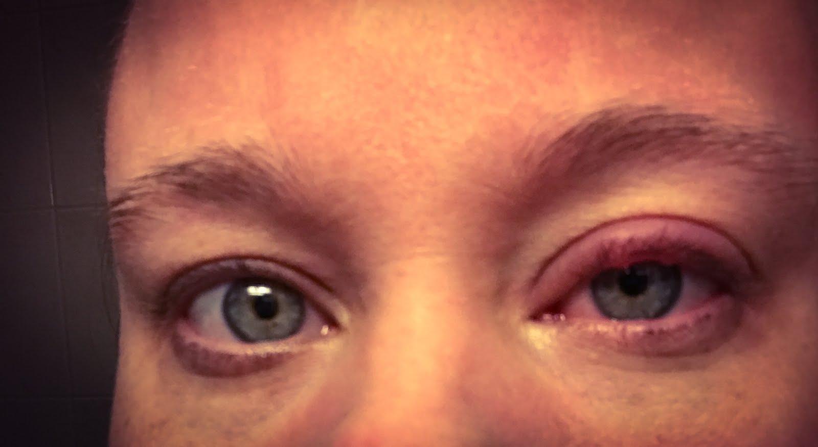 vagel i ögat behandling