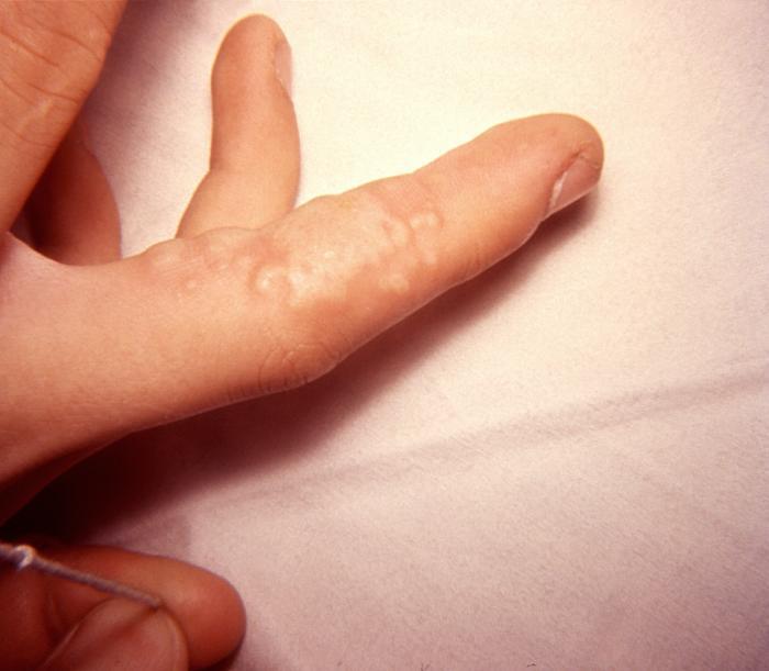 Herpes 2