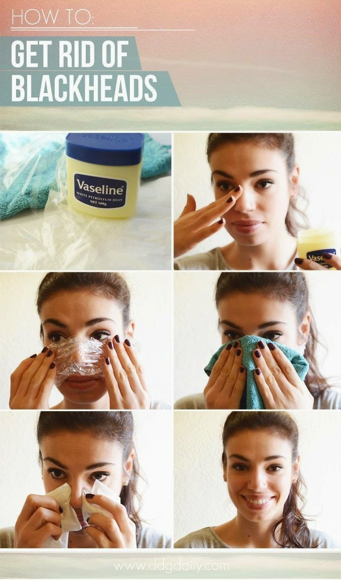 Broke fabulous diy review get rid of blackheads get rid of blackheads as a human being with pores in her skin i happen to have quite a few blackheads after trying quite a few different methods solutioingenieria Images
