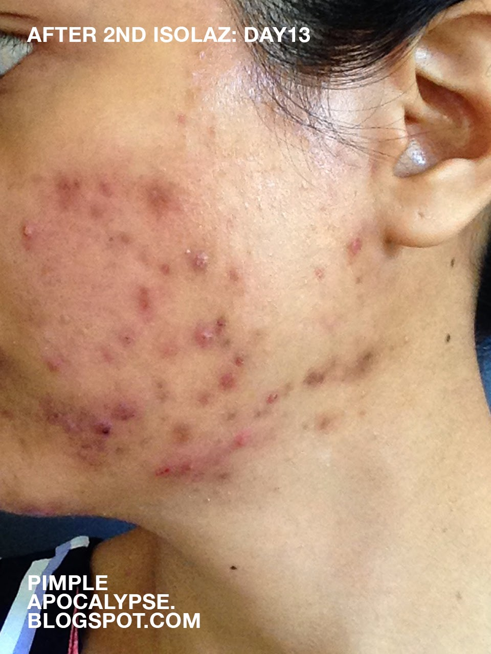 how to cure acne fast, acne breakouts before and after, Isolaz laser before and after, Isolaz review, cystic acne, closed comedones, clogged pores, whiteheads, hyperpigmentation, acne scars, Laser Genesis on dark skin, Laser Genesis review, P. acne bacteria, hormonal acne, adult acne, androgen acne, trying to conceive, pregnancy acne, birth control pills, minocycline acne medication