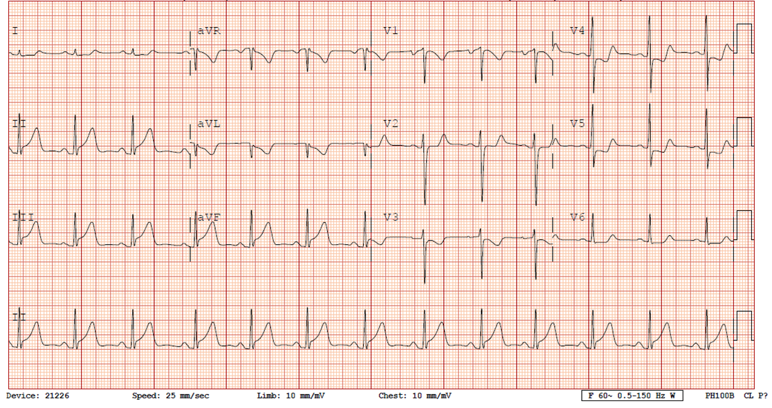 Dr. Smith's ECG Blog: Chest Pain in a Male in his 20's ...