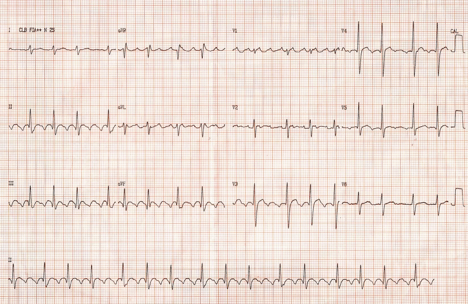 Atrial Flutter - Life in the Fast Lane ECG Library
