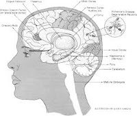 Obat Untuk Sakit Alzheimer Herbal