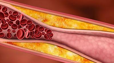 Yuk Hilang Kolesterol Jahat Dan Darah Tinggi Dalam 7 Hari dengan Konsumsi Resep Ini Sebelum Sarapan Dan Makan Malam