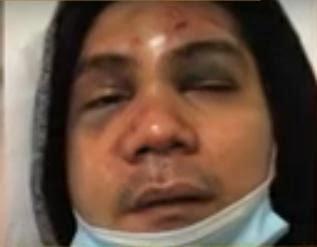 Vhong Navarro, Vhong Navarro beaten, Vhong Navarro rapist allegedly