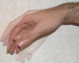 Causes and Symptoms of Hand Tremor