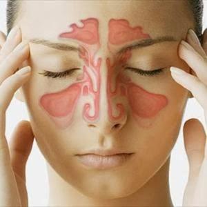Gejala sinusitis